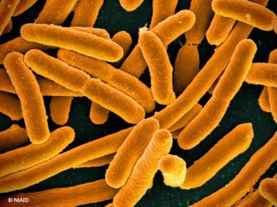 میکروارگانیسم های تصفیه فاضلاب شامل چه مواردی می شوند؟