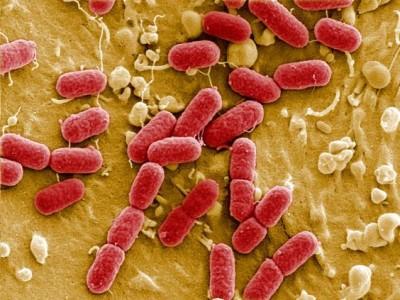 پارامترهای مؤثر بر رشد باکتری های فاضلاب چیست؟
